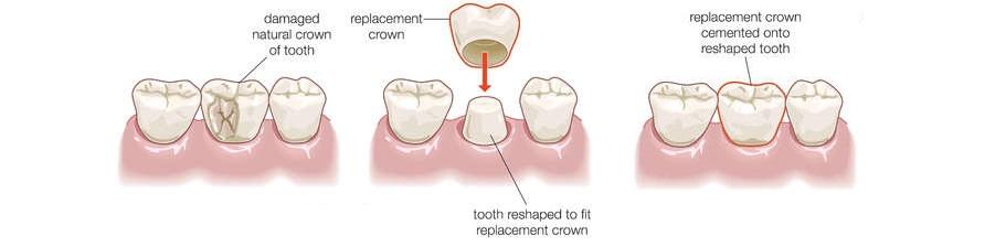 Geelong Dental Crown