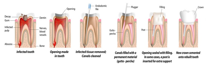 Geelong Dentist Clinic Root Canal