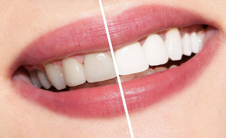 Teeth Whitening Geelong